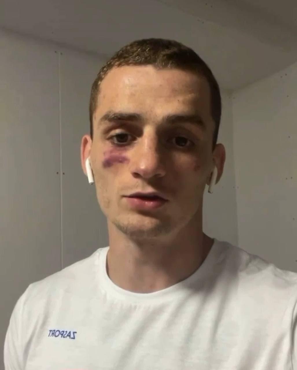 «Друзья, спасибо всем, кто болел, кто переживал»: Боксёр Глеб Бакши поблагодарил своих подписчиков за поддержку