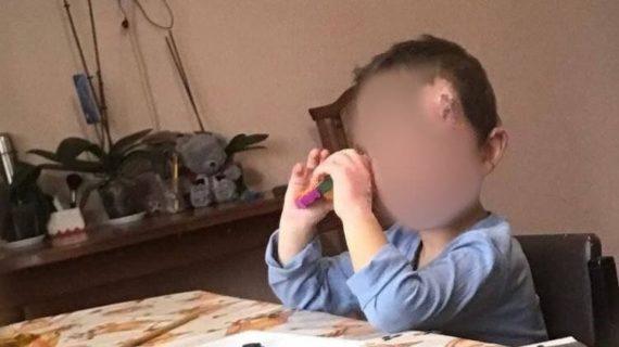 Ребёнка, которого отец  чуть не сжёг в машине, уже выписали из больницы